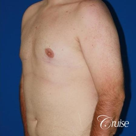 moderate gynecomastia with pointy man boobs -  After Image 3
