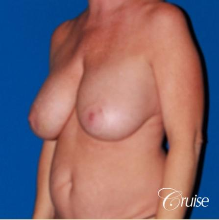 best breast lift revision with saline 270cc - Before Image 3