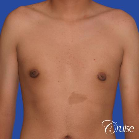 gynecomastia patient gets nipple reduction for best results -  After Image 1