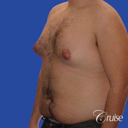male liposuction abdomen flanks with Gynecomastia - Before Image 3