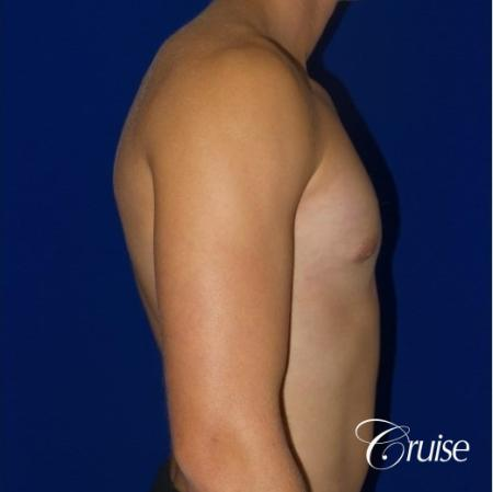 Teenage Gynecomastia -Areola Incision - After Image 3