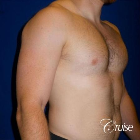 Dr. Cruise gynecomastia surgery photos -  After Image 2