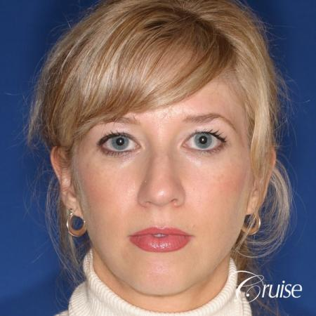 female patient with best chin implant scar - Before Image 1