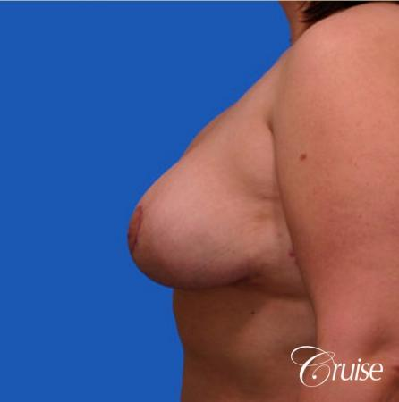 breast reduction surgery on large breast -  After Image 2