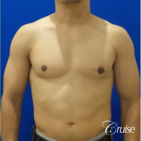 gynecomastia photos of an adult with overdeveloped breast -  After Image 1