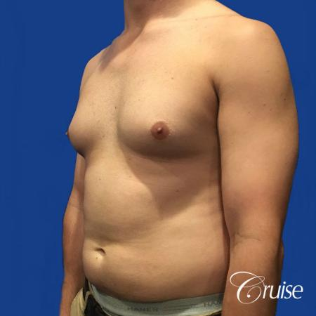 gyne before and after photos orange county ca - Before Image 2