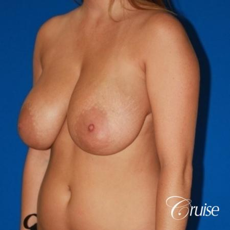 best breast lift and reduction with small saline implants - Before and After Image 3