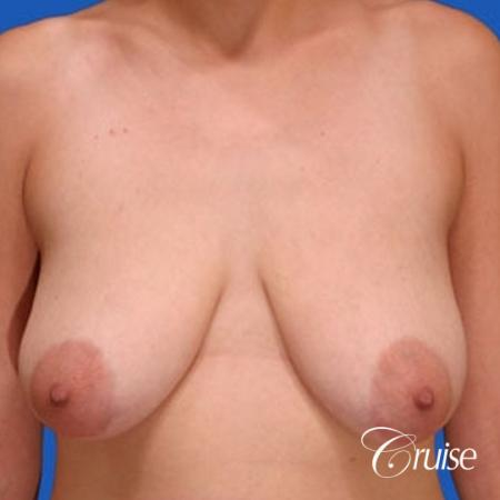 best results for breast lift anchor with top plastic surgeon - Before Image 1