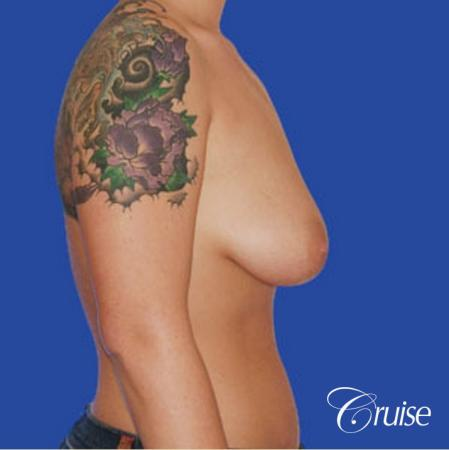 best photos of 20 yr old with saline breast reduction surgery - Before Image 4