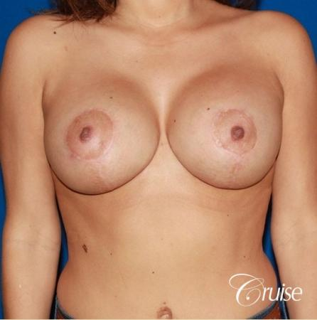 best saline breast lift with 470cc implants -  After Image 1