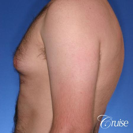 best Puffy nipple correction and gynecomastia on young adult - Before Image 2