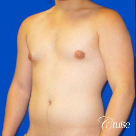 Best Gynecomastia surgeons Southern California - Before Image 3