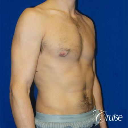 Unilateral gynecomastia condition photos -  After Image 2