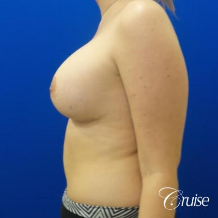 silicone implants with breast lift anchor newport beach -  After Image 2