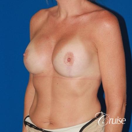 moderate profile saline breast lift anchor before and after pictures -  After Image 3