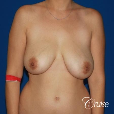 best results for breast lift anchor with saline implanta - Before Image 1