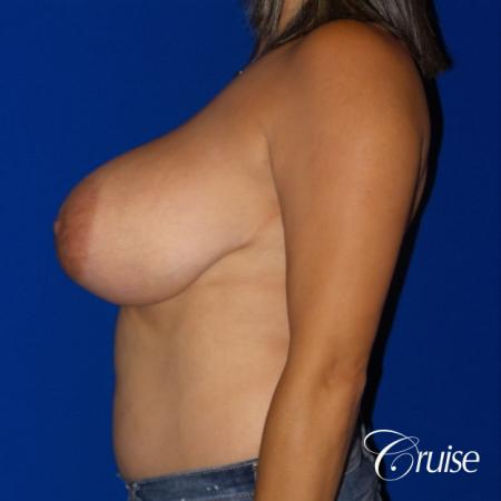 Breast reduction surgery with no implants added - Before Image 3