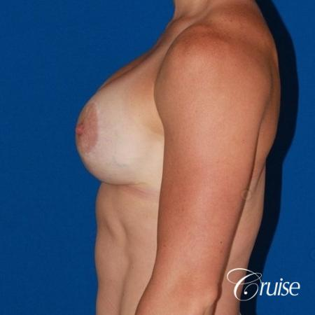 best breast lift anchor on athletic body type -  After Image 3