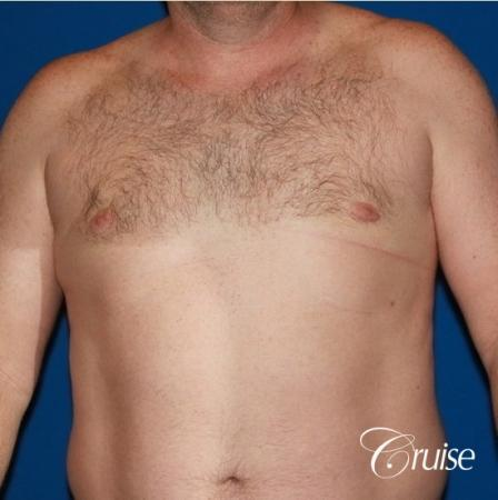mild puffy nipple on 42 year old -  After Image 1