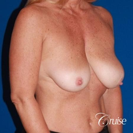 best breast lift with implants - Before Image 4