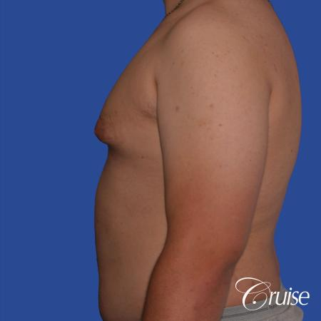 best scars for moderate gynecomastia - Before Image 2