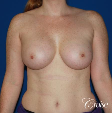 Breast Augmentation - After 1
