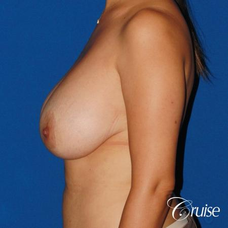 revision breast lift anchor with saline implants - Before Image 2