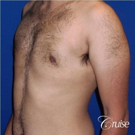 Moderate Gynecomastia Areola Incision - After Image 3