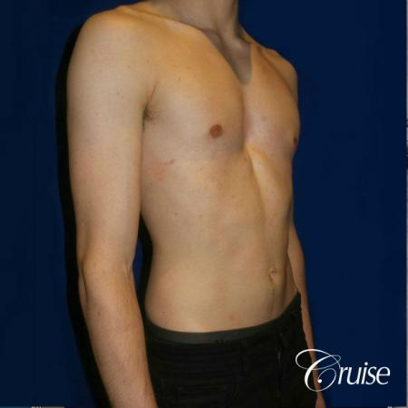 Top Gynecomastia Specialist Dr. Cruise -  After Image 5