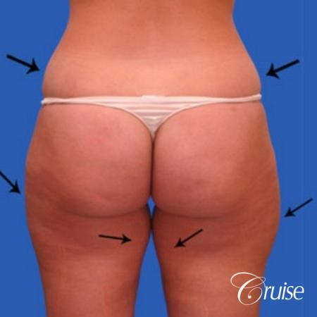 best liposuction abdomen flanks medial and lateral thighs dramatic - Before and After Image 3