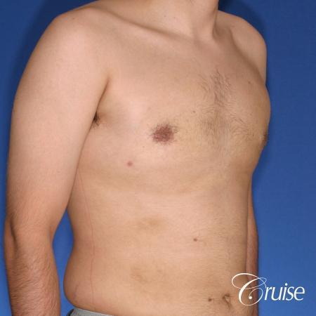 moderate gynecomastia puffy nipple -  After Image 4