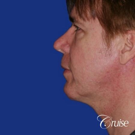 male with best scar for chin implant -  After Image 2