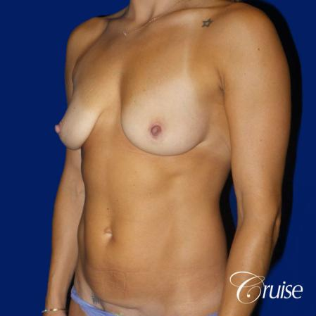 Mommy Makeover Best plastic surgeons - Before and After Image 3