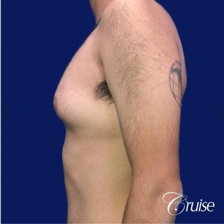 Moderate Gynecomastia Areola Incision - Before Image 2