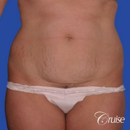 best dramatic flank liposuction pictures - Before Image 1