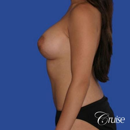 best pictures of low mini tuck and breast augmentation Newport Beach -  After Image 2