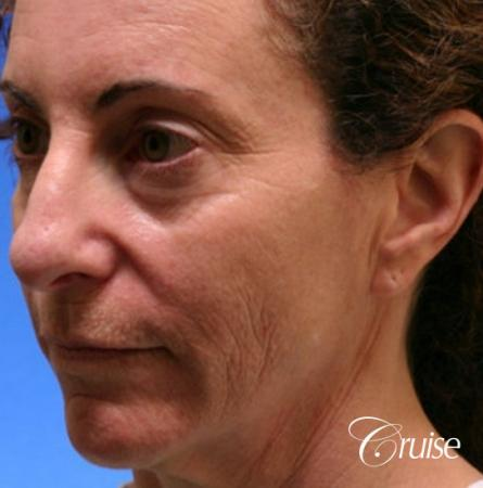 best female chemical peel - Before Image