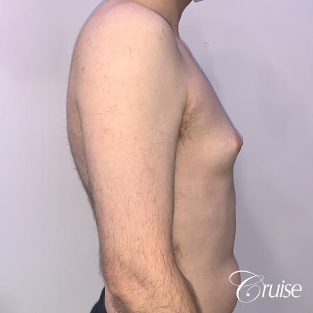 Gynecomastia: Patient 128 - Before 4