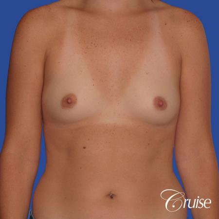 Breast Augmentation - Before 1