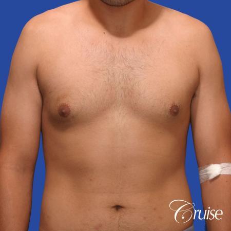 mild gynecomastia standard PA areola incision - Before Image 1
