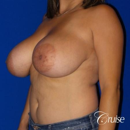 Breast reduction surgery with no implants added - Before Image 2
