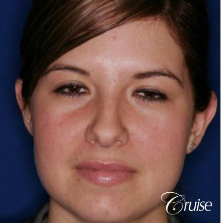 best otoplasty on adolescent - Before Image 1