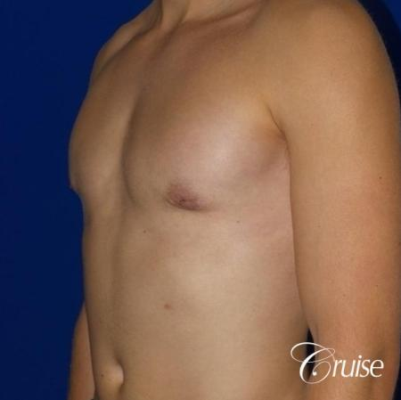 Mild Gynecomastia -Areola Incision - After Image 2