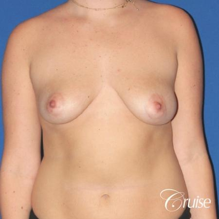 silicone implants with breast lift anchor newport beach - Before Image 1