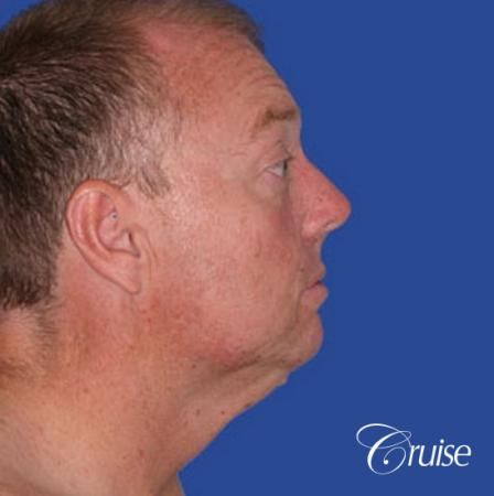 best male chin implant with large square jaw - Before and After Image 2