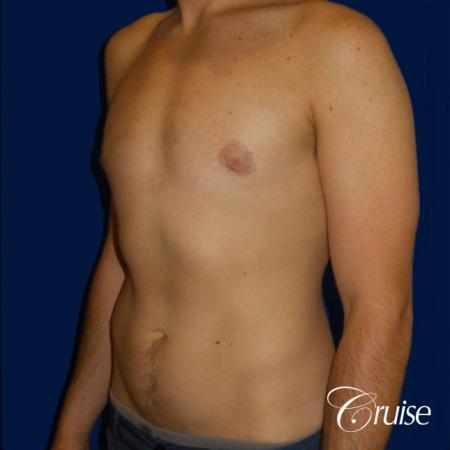 Mild Gynecomastia- Areola Incision - After Image 2
