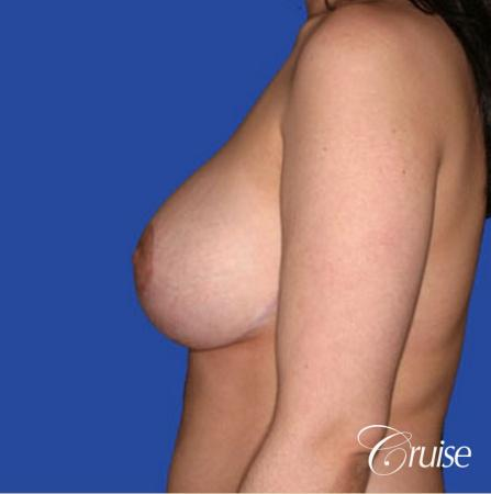 best round saline implants after breast reduction -  After Image 2