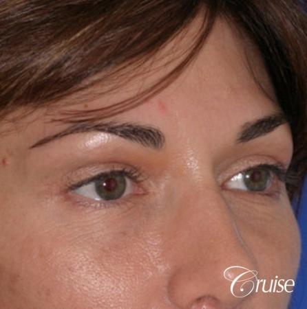 best soft tissue filler using Juvaderm -  After Image 3