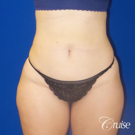 Liposuction Flanks & Abdomen - After Image 3_2