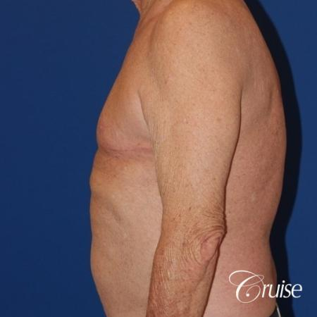 free nipple graft gynecomastia on old man - After Image 3